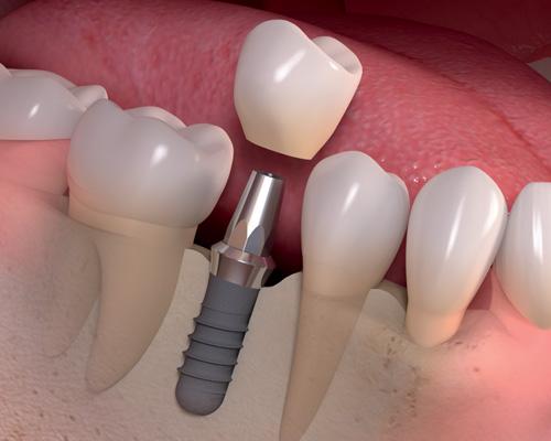 Odbudowa pojedynczego zęba
